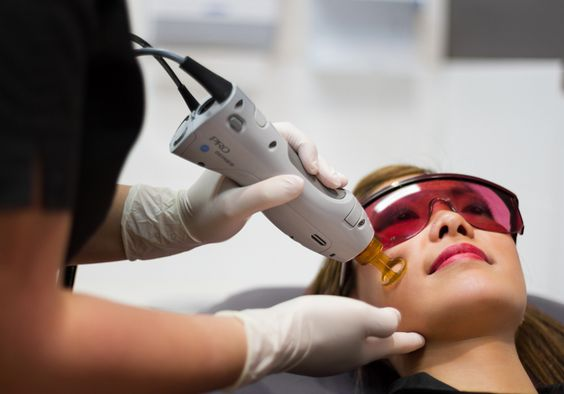 Using lasers for a tight and younger looking skin on Fashion and Cookies beauty blog, beauty blogger