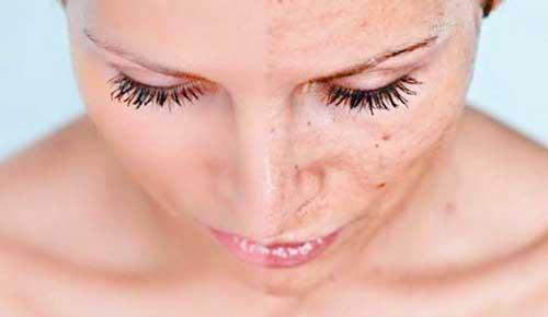manchas en la cara antes y despues cremas despigmentantes