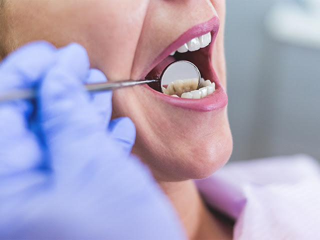 How To Prevent Tooth Pain?