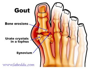 Causes and How to Naturally Treat Gout (Uric Acid) - Foods That Cause Gout