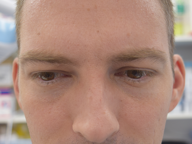 Client frowning after his botox treatment on the Gold Coast.