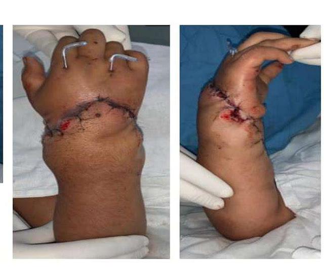8 साल की बच्ची का कटा हुआ हाथ पीजीआई के डॉक्टर ने जोड़ा 11 घंटे चली सर्जरी.. एक सैल्यूट तो बनता है।..जय हो..