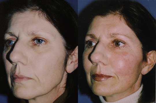 midface lift Los Angeles