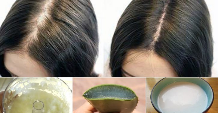 Apply This Natural Treatment To Your Hair And They Will Not Stop Pushing!