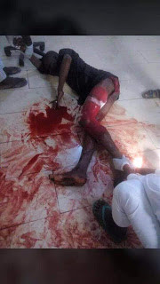 Robbery victim bleeds to death on hospital floor in Zamfara, nurses refused to attend to him for 5 hours (Graphic photo)