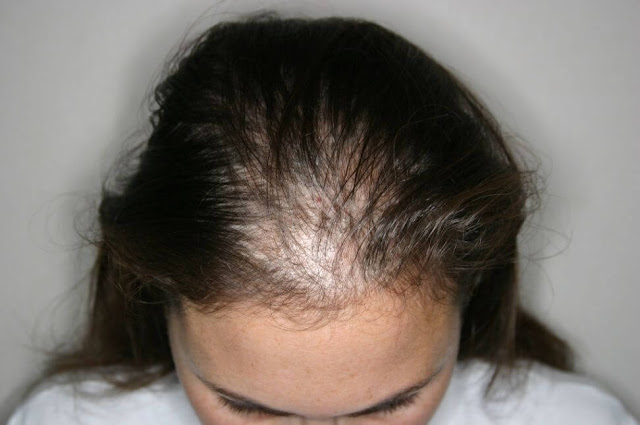 The Cause Of Hair Loss In Women
