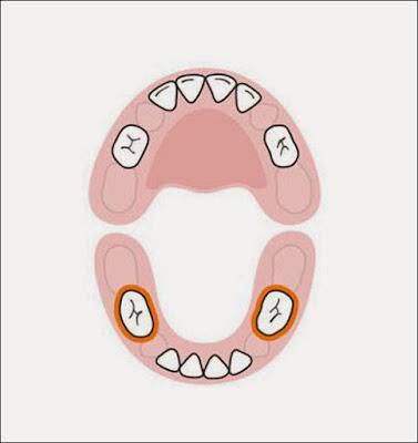 Cần bảo vệ răng số 6 hàm dưới khỏi bị sâu