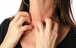 Ayurvedic treatment of skin diseases in Nashik