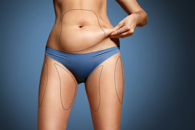 areas for liposuction