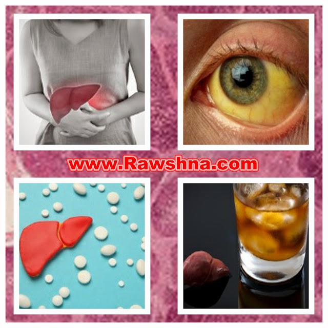 علاج تليف الكبد و اعراض و اسباب تليف الكبد