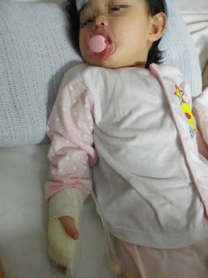 Awalnya Hanya Demam, Keadaan Bayi Ini Jadi Mengerikan Dikarenakan Rumah Sakit Ceroboh