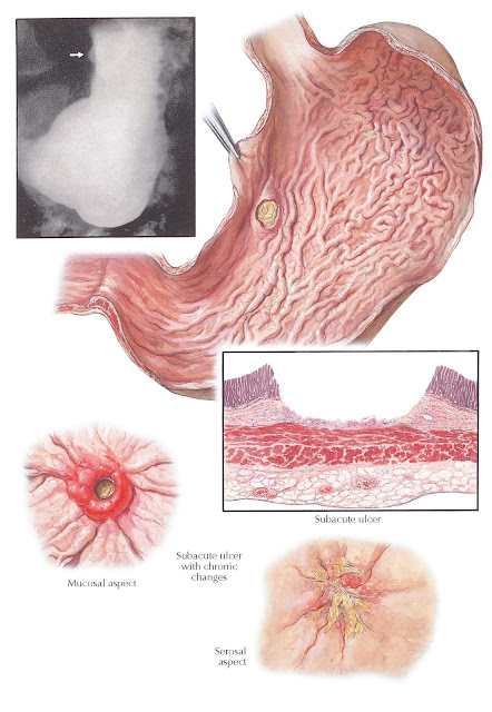 SUBACUTE ULCER OF STOMACH