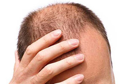 Argan Life Hair Loss Shampoo