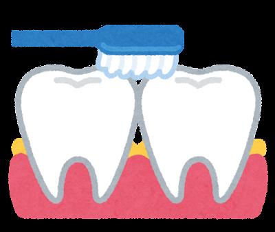 歯間部の歯垢のイラスト
