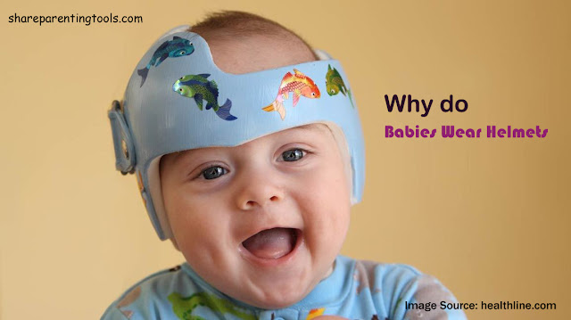 Check Out Why Do Babies Wear Helmets