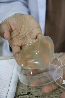 Kembangkan Plastik Dari Singkong, Meida Wakili Universitas Jember  ke Berprestasi Nasional