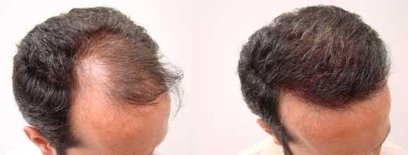 cuanto cuesta un implante de cabello o implante capilar