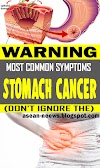 Stomach Cancer: A Silent Killer – Most Common Symptoms (Don't Ignore Them)
