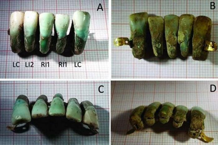 Gigi Palsu Dulunya Terbuat dari Gigi Manusia