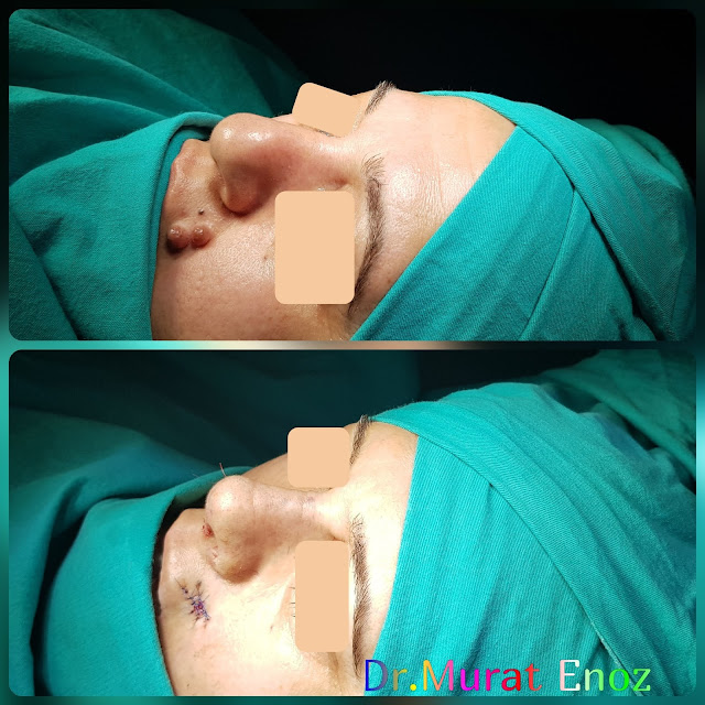 Crooked Nose Aesthetic, Nevus Excision From Lip,caudal septal dislocation, Nose Deformity,Complicated Nose Surgery