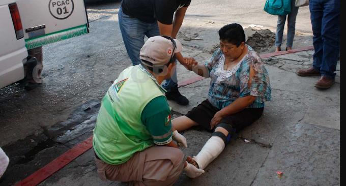 Mujer se fractura su pierna con su propio peso