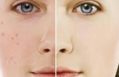 Permasalahan pada kulit yang semenjak dialami oleh siapa pun terutama pada perempuan yakni jera Tips Menghilangkan Jerawat