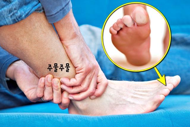 혈액순환이 안되면 나타나는 증상, 손발이 시리는 이유, 건강, 팁줌마 매일꿀정보