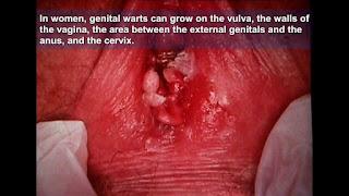 Image obat virus kutil kelamin paling ampuh