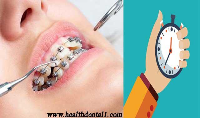 متى تبدا الاسنان تتحرك بعد التقويم