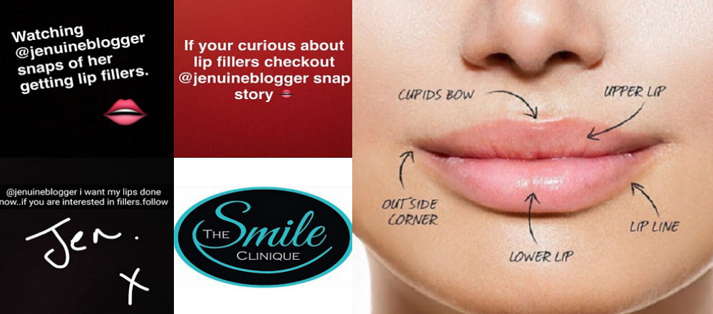 lip fillers perth