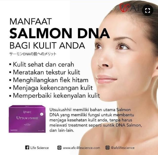 Jual SOP Subarashii Harga - Obat Herbal Penyakit Gula, Jual di Bali. Utsukushhii Jerawat.