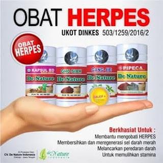 Pengobatan  Penyakit Herpes yang Tepat dan Cepat