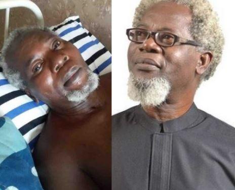 Veteran Actor, Victor Olaotan Two Legs May Be Cut-Off.