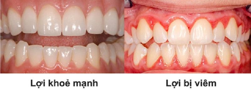 Nguy-cơ-mất-răng-vì-bệnh-viêm-nướu-1
