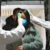 Estados Unidos acumula 560.996 muertos y 31.079.167 contagios por covid-19