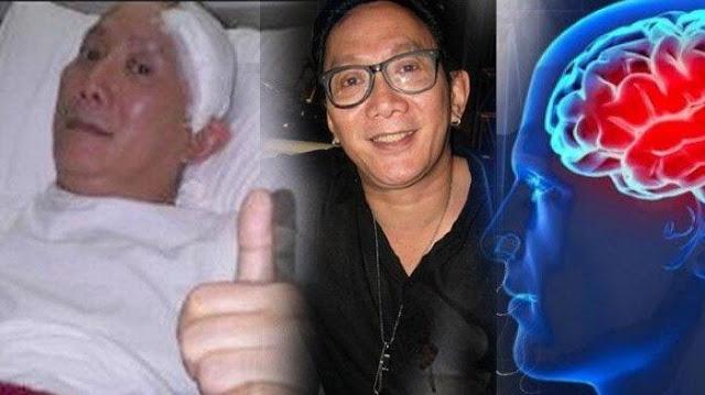 Lawan Stroke Sejak 2010 Robby Tumewa Meninggal Dunia, Kenali Gejala Penyakitnya