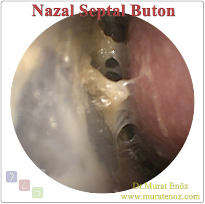 Silicone septal buttons for nasal septum perforation - Nasal septum perforation treatment in İstanbul - Nasal septal perforation and silicone buttons - Risks and complications of silicone septal buttons - Nasal septum perforation repair in Turkey