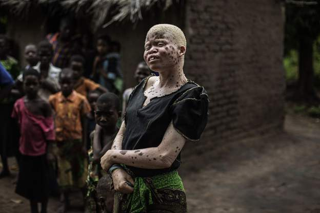 Albino candidates to run for office in Malawi