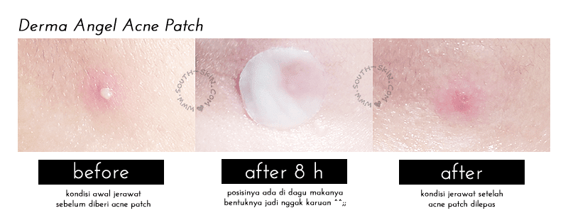 derma-angel-acne-patch-review