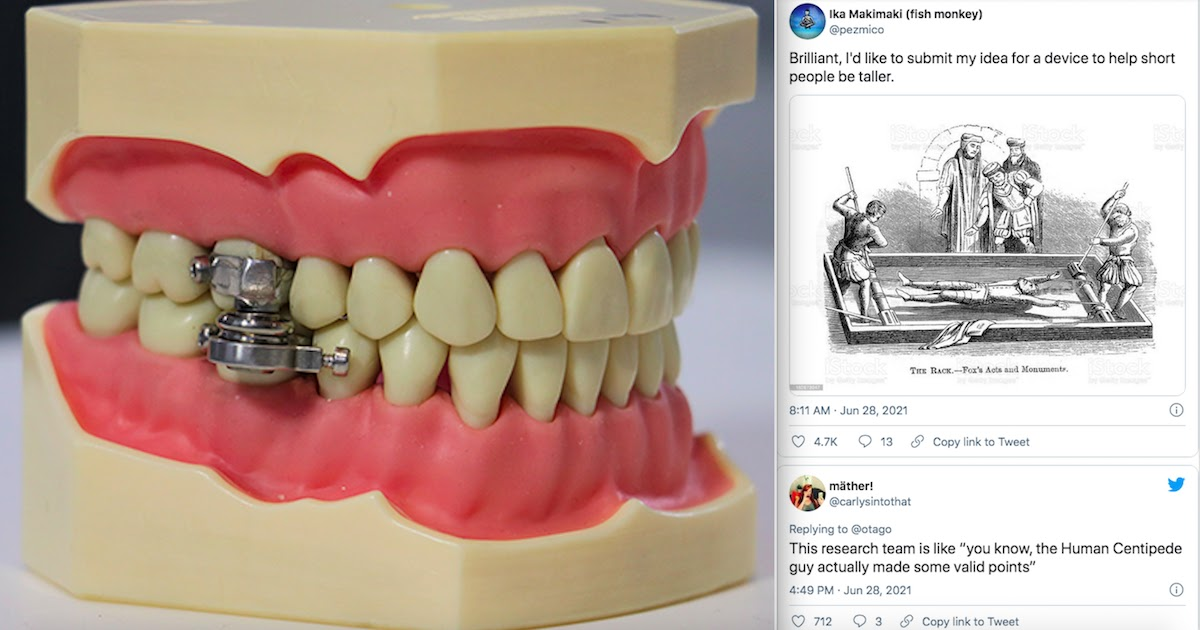 Scientists Develop Weight-Loss Device That Locks People's Jaws Shut And Twitter Users Are Furious
