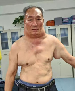 Photos Of Man Who Now Looks Like 'The Hulk' After 30 Years Of Heavy Drinking Left Him Disfigured
