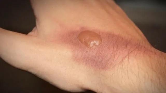 Cara mengobati luka bakar yang menggelembung dan berair dengan bahan alami agar cepat kering