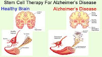 Alzheimer's Disease and Its Cause