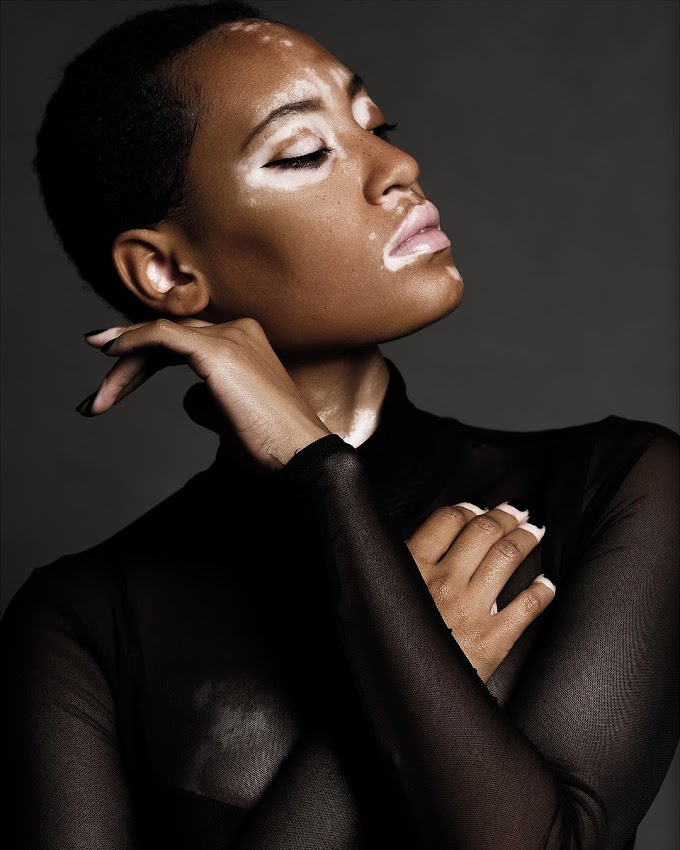 CoverGirl's Latest Campaign features Model with Vitiligo