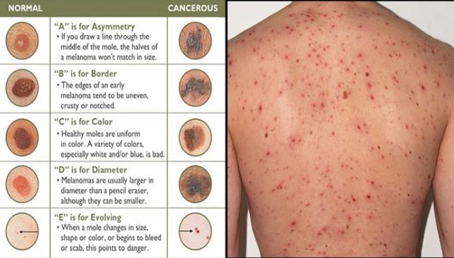 Kanker Kulit, Penyebab, Gejala dan Pencegahan Terlengkap ...