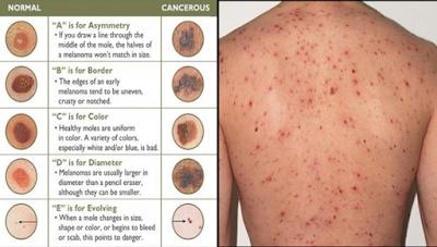 Kanker Kulit, Penyebab, Gejala dan Pencegahan Terlengkap