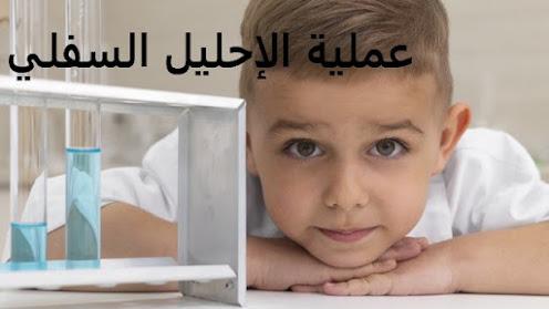 عملية الإحليل السفلي عن الأطفال