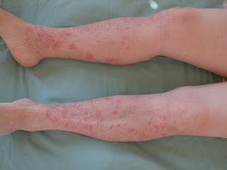 remedios caseros para la psoriasis en la piernas