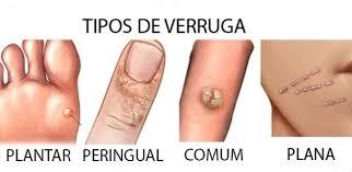 La enfermedad varicosa de las extremidades inferiores como curar