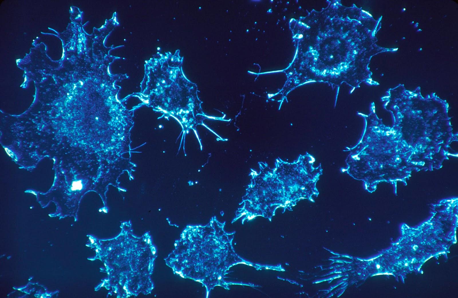 العلاج الجيني لمرضى الأنيميا المنجلية.. ما هو؟ وفي إي إطار مستقبلي يقع؟ وما هي خبايا نتائج التقرير الطبي الفرنسي الذي نشر نتائج أول حالاتها المُعَالَجة مطلع هذا الشهر؟